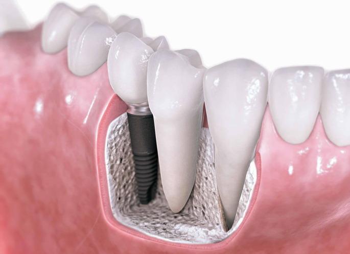 Имплантация зубов в Калининграде: показания, особенности, процедура